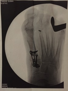 Screws and plate under big toe and 2nd metatarsal